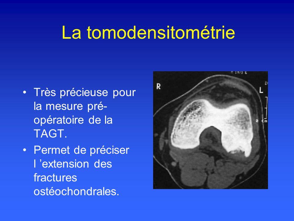 La tomodensitométrie Très précieuse pour la mesure pré- opératoire de la TAGT.