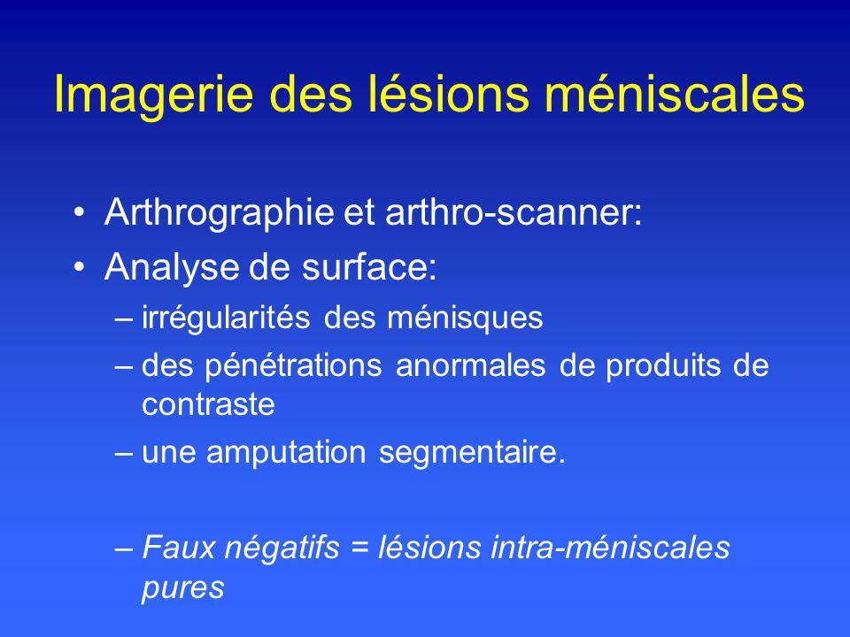 Imagerie des lésions méniscales Arthrographie et arthro-scanner: Analyse de surface: –irrégularités des ménisques –des pénétrations anormales de produits de contraste –une amputation segmentaire.