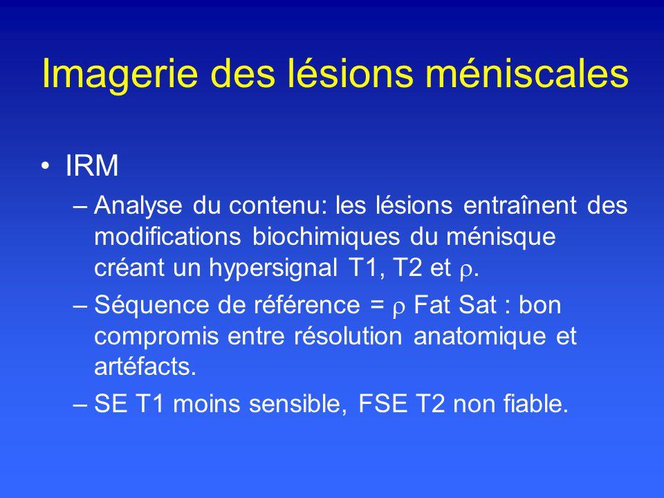 Imagerie des lésions méniscales IRM –Analyse du contenu: les lésions entraînent des modifications biochimiques du ménisque créant un hypersignal T1, T2 et.
