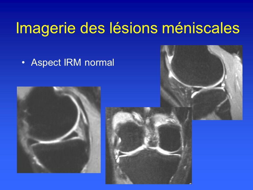 Aspect IRM normal Imagerie des lésions méniscales