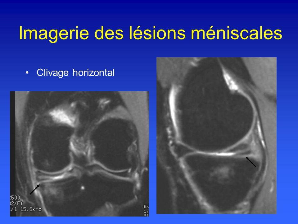 Imagerie des lésions méniscales Clivage horizontal