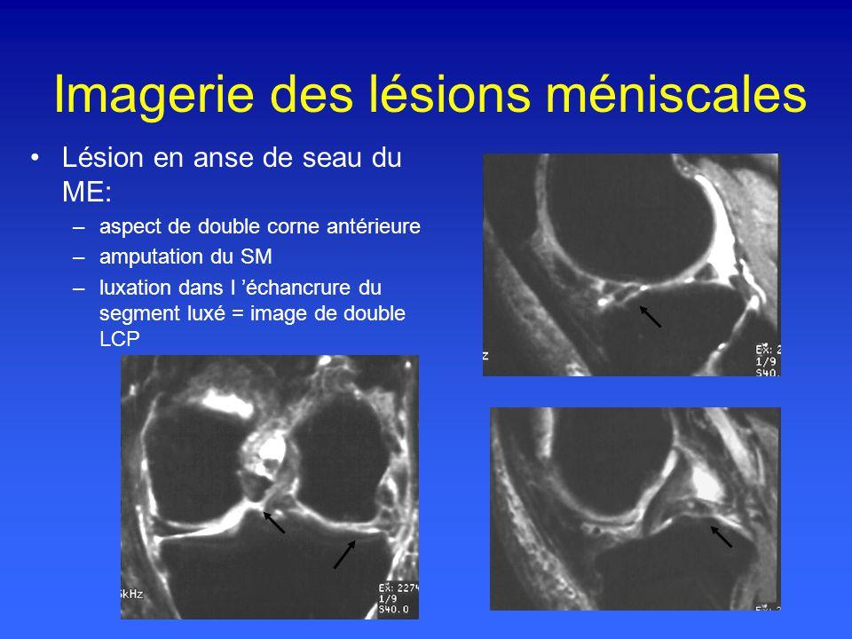 Imagerie des lésions méniscales Lésion en anse de seau du ME: –aspect de double corne antérieure –amputation du SM –luxation dans l échancrure du segment luxé = image de double LCP