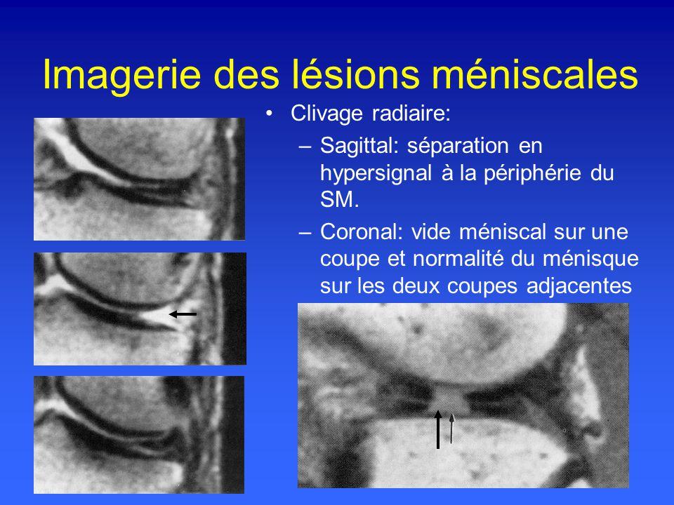 Imagerie des lésions méniscales Clivage radiaire: –Sagittal: séparation en hypersignal à la périphérie du SM.