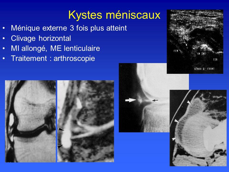 Kystes méniscaux Ménique externe 3 fois plus atteint Clivage horizontal MI allongé, ME lenticulaire Traitement : arthroscopie