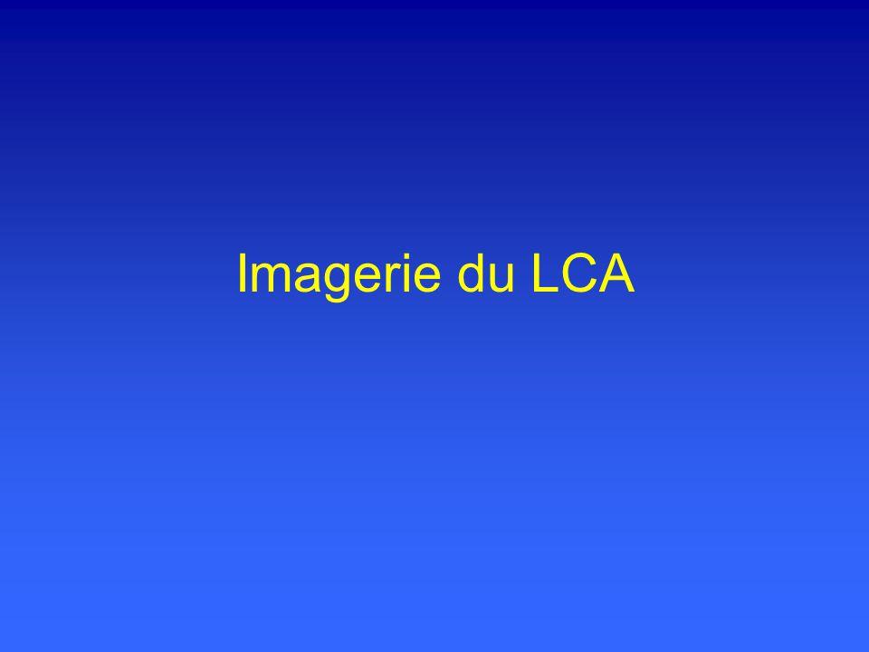 Imagerie du LCA