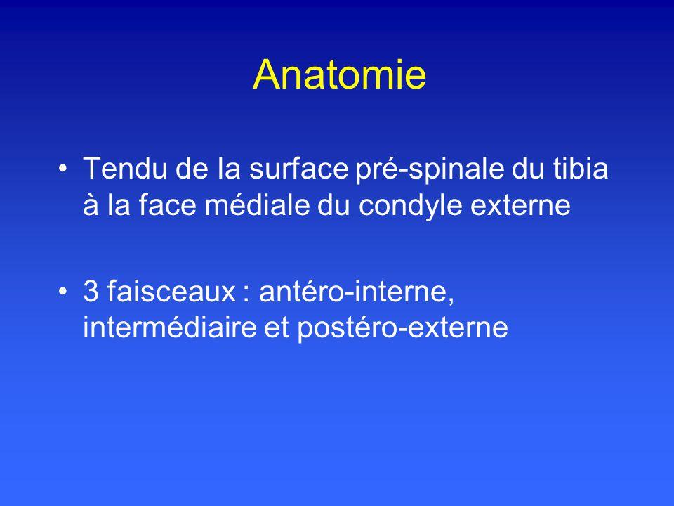 Anatomie Tendu de la surface pré-spinale du tibia à la face médiale du condyle externe 3 faisceaux : antéro-interne, intermédiaire et postéro-externe