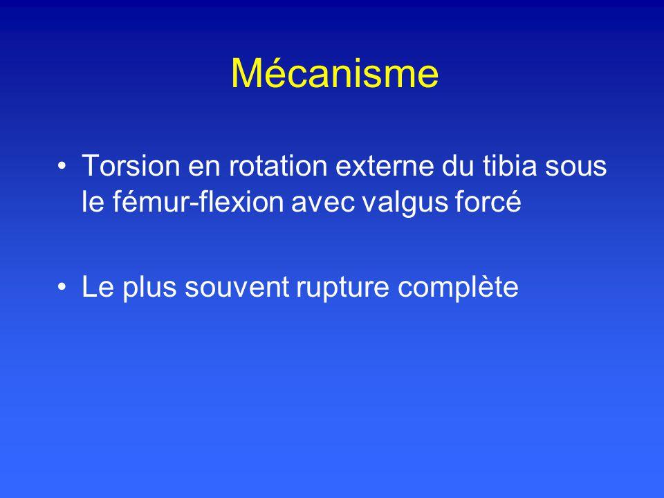 Mécanisme Torsion en rotation externe du tibia sous le fémur-flexion avec valgus forcé Le plus souvent rupture complète