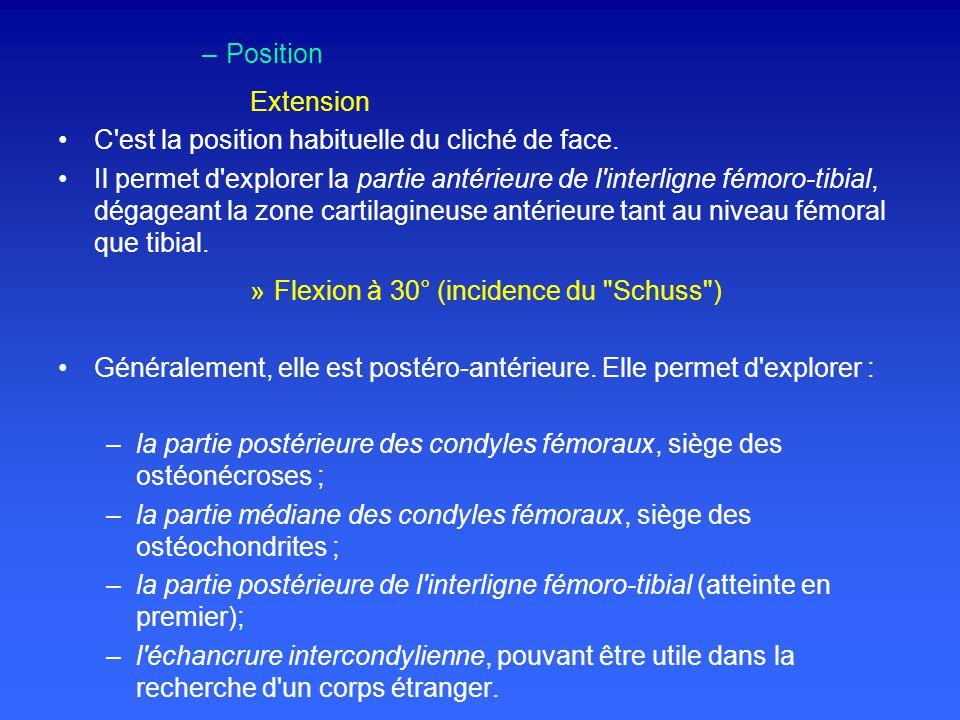 –Position Extension C est la position habituelle du cliché de face.