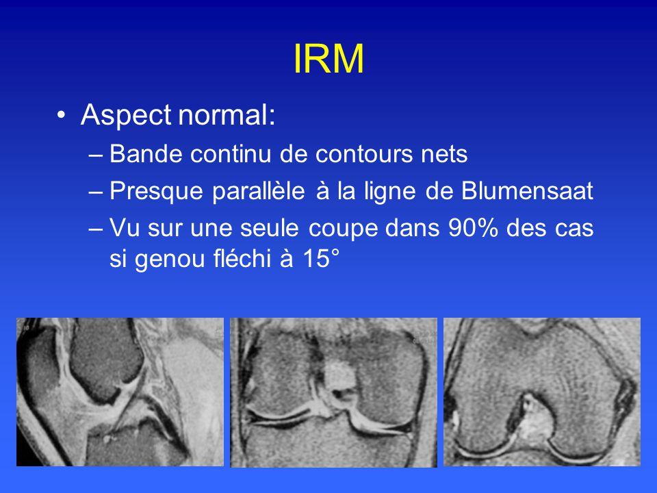 IRM Aspect normal: –Bande continu de contours nets –Presque parallèle à la ligne de Blumensaat –Vu sur une seule coupe dans 90% des cas si genou fléchi à 15°