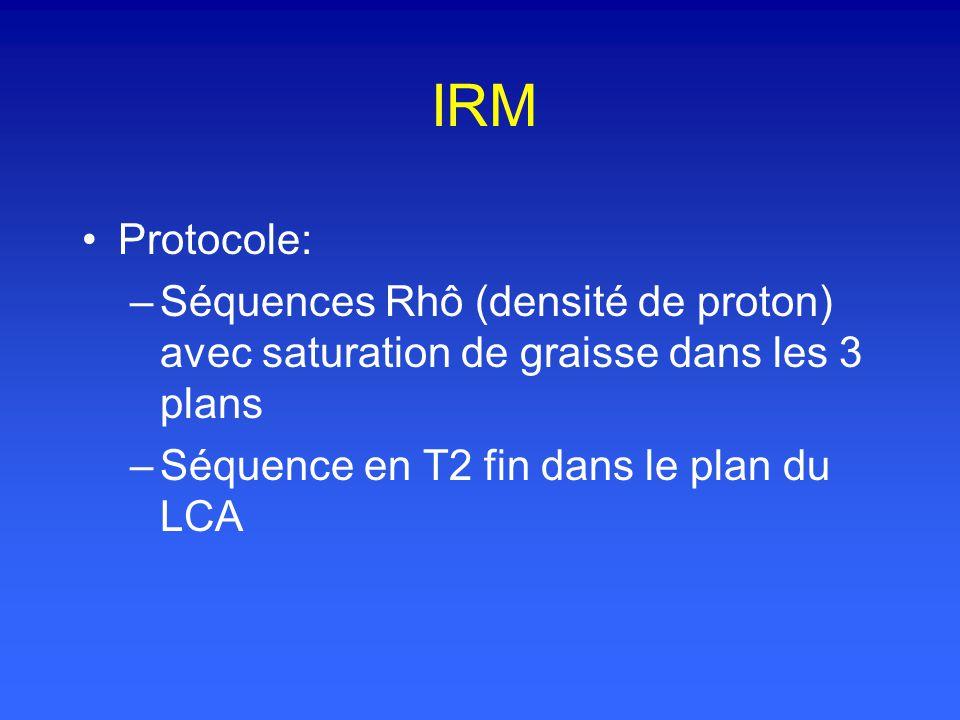 IRM Protocole: –Séquences Rhô (densité de proton) avec saturation de graisse dans les 3 plans –Séquence en T2 fin dans le plan du LCA