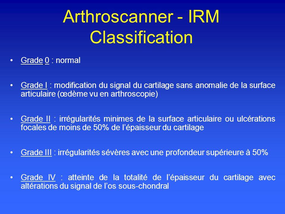 Arthroscanner - IRM Classification Grade 0 : normal Grade I : modification du signal du cartilage sans anomalie de la surface articulaire (œdème vu en arthroscopie) Grade II : irrégularités minimes de la surface articulaire ou ulcérations focales de moins de 50% de lépaisseur du cartilage Grade III : irrégularités sévères avec une profondeur supérieure à 50% Grade IV : atteinte de la totalité de lépaisseur du cartilage avec altérations du signal de los sous-chondral