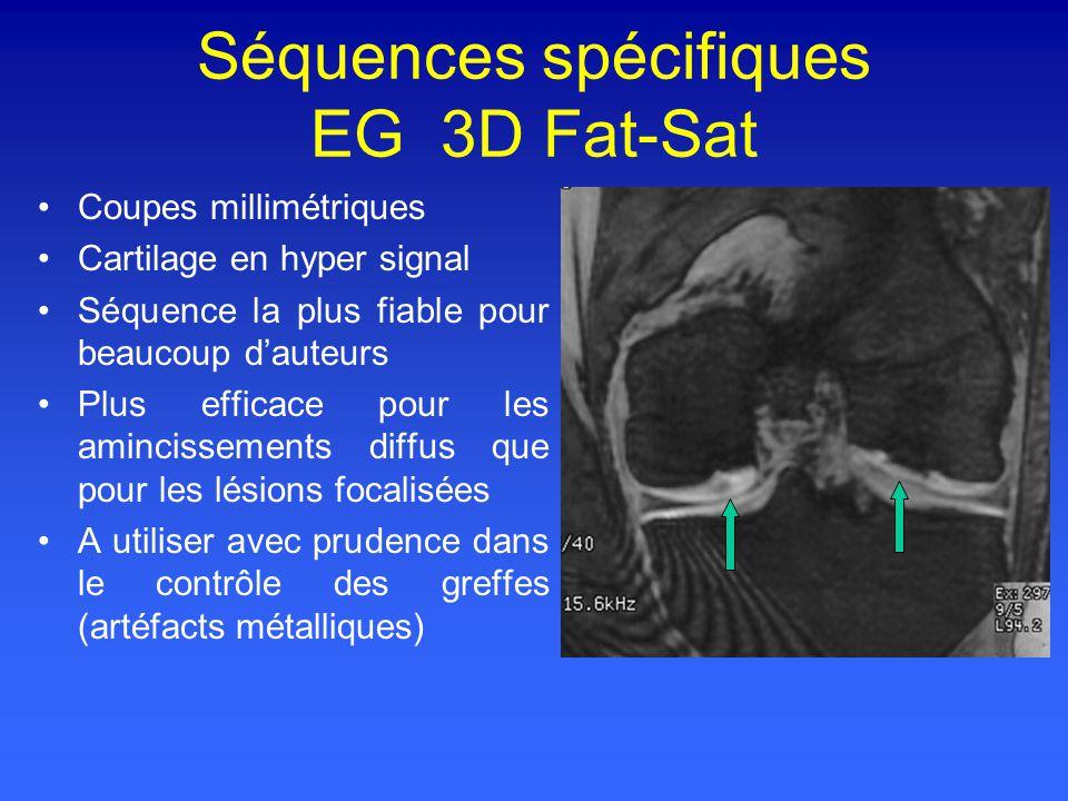Séquences spécifiques EG 3D Fat-Sat Coupes millimétriques Cartilage en hyper signal Séquence la plus fiable pour beaucoup dauteurs Plus efficace pour les amincissements diffus que pour les lésions focalisées A utiliser avec prudence dans le contrôle des greffes (artéfacts métalliques)