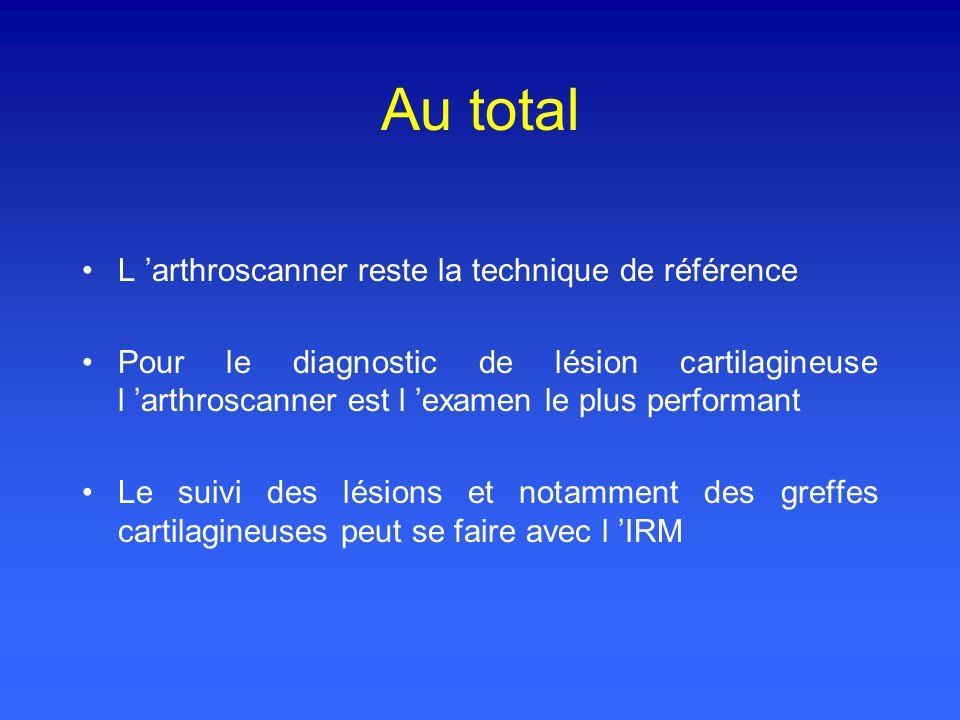 Au total L arthroscanner reste la technique de référence Pour le diagnostic de lésion cartilagineuse l arthroscanner est l examen le plus performant Le suivi des lésions et notamment des greffes cartilagineuses peut se faire avec l IRM