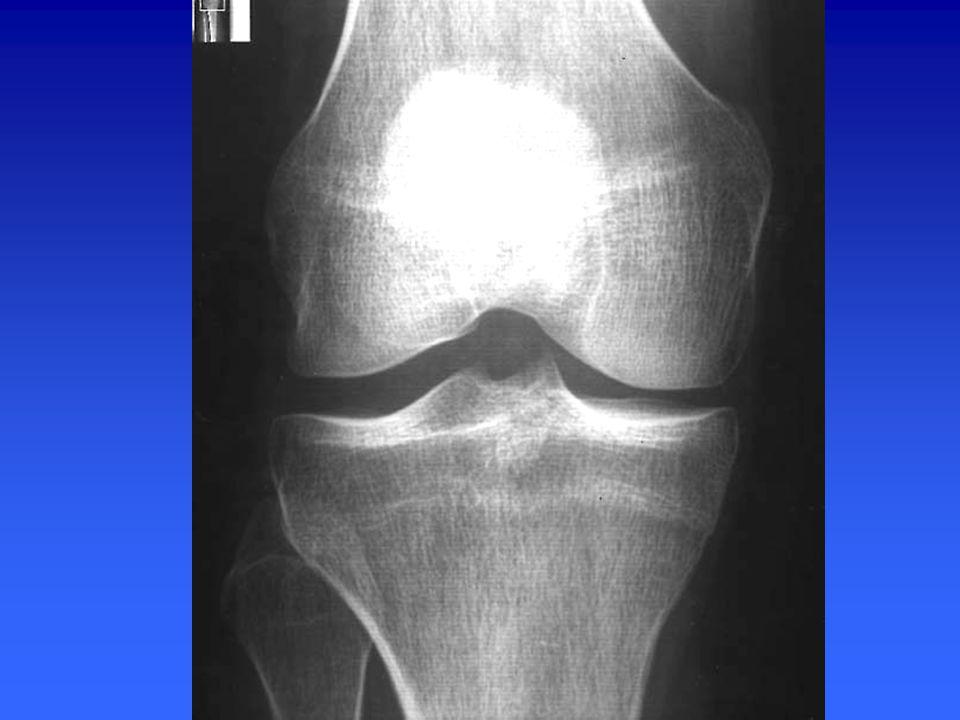 Radiographie du genou de profil –Critères de qualité Le rayon doit passer par l interligne articulaire.