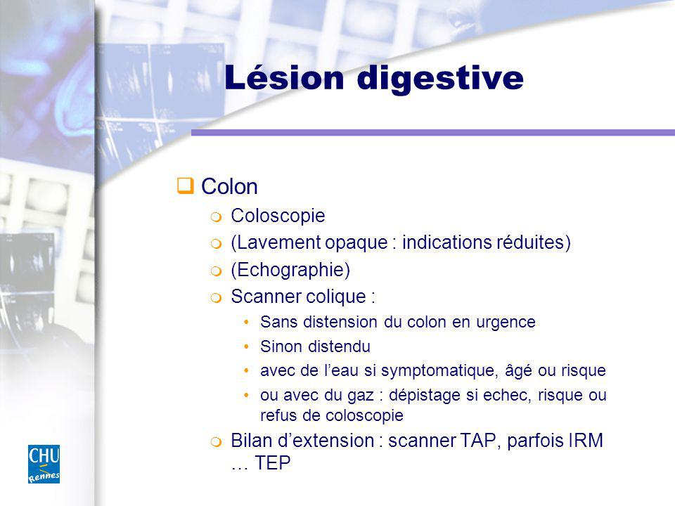 Lésion digestive Colon Coloscopie (Lavement opaque : indications réduites) (Echographie) Scanner colique : Sans distension du colon en urgence Sinon d