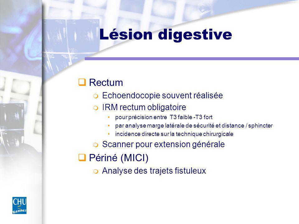 Lésion digestive Rectum Echoendocopie souvent réalisée IRM rectum obligatoire pour précision entre T3 faible -T3 fort par analyse marge latérale de sécurité et distance / sphincter incidence directe sur la technique chirurgicale Scanner pour extension générale Périné (MICI) Analyse des trajets fistuleux