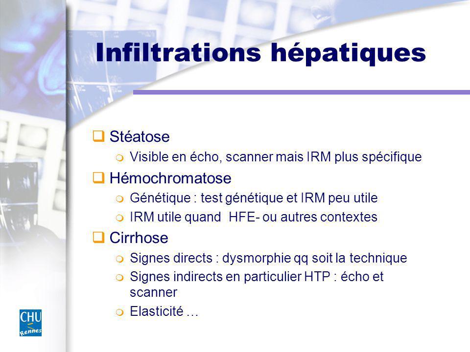Infiltrations hépatiques Stéatose Visible en écho, scanner mais IRM plus spécifique Hémochromatose Génétique : test génétique et IRM peu utile IRM utile quand HFE- ou autres contextes Cirrhose Signes directs : dysmorphie qq soit la technique Signes indirects en particulier HTP : écho et scanner Elasticité …
