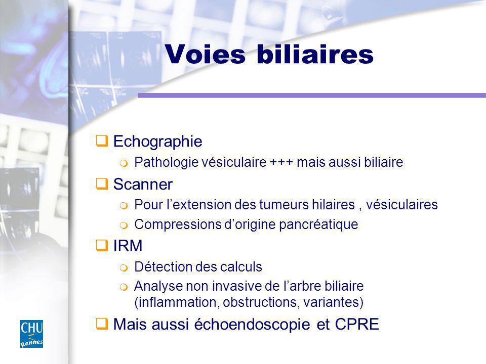 Voies biliaires Echographie Pathologie vésiculaire +++ mais aussi biliaire Scanner Pour lextension des tumeurs hilaires, vésiculaires Compressions dor