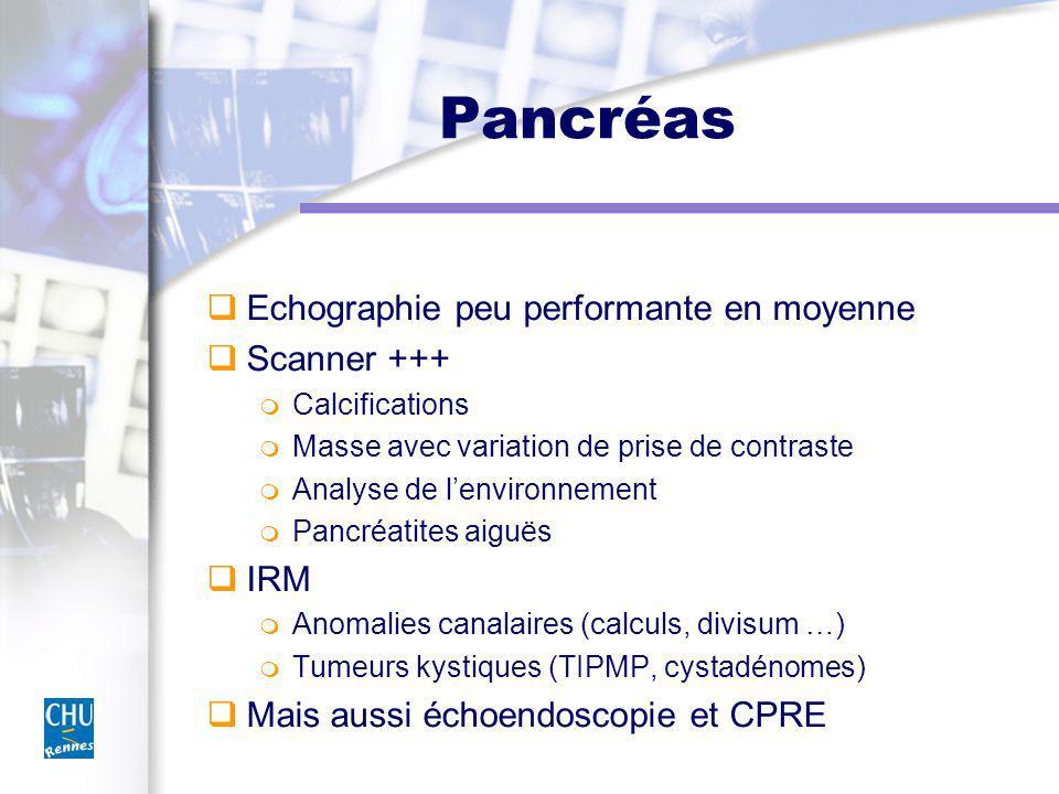 Pancréas Echographie peu performante en moyenne Scanner +++ Calcifications Masse avec variation de prise de contraste Analyse de lenvironnement Pancréatites aiguës IRM Anomalies canalaires (calculs, divisum …) Tumeurs kystiques (TIPMP, cystadénomes) Mais aussi échoendoscopie et CPRE