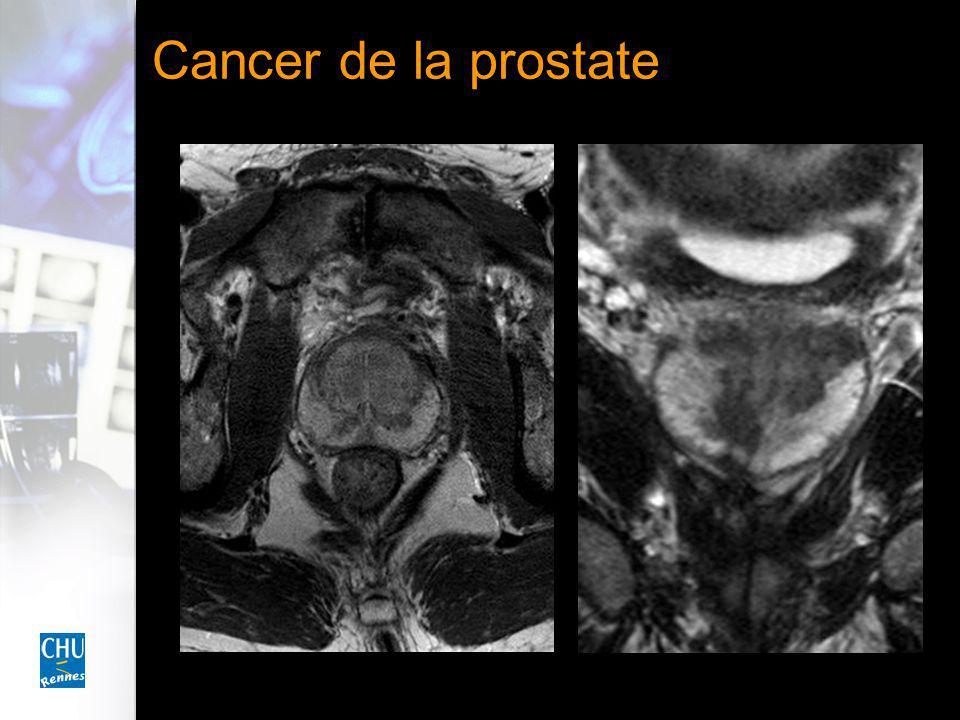 Phase tardivePhase artérielle Cancer de la prostate