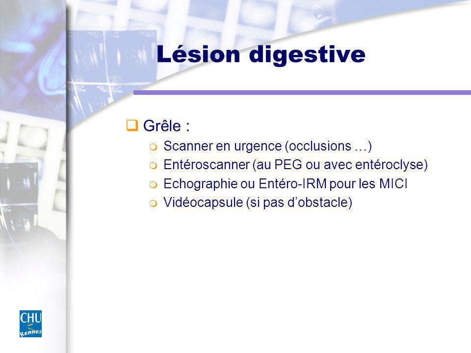 Lésion digestive Grêle : Scanner en urgence (occlusions …) Entéroscanner (au PEG ou avec entéroclyse) Echographie ou Entéro-IRM pour les MICI Vidéocapsule (si pas dobstacle)