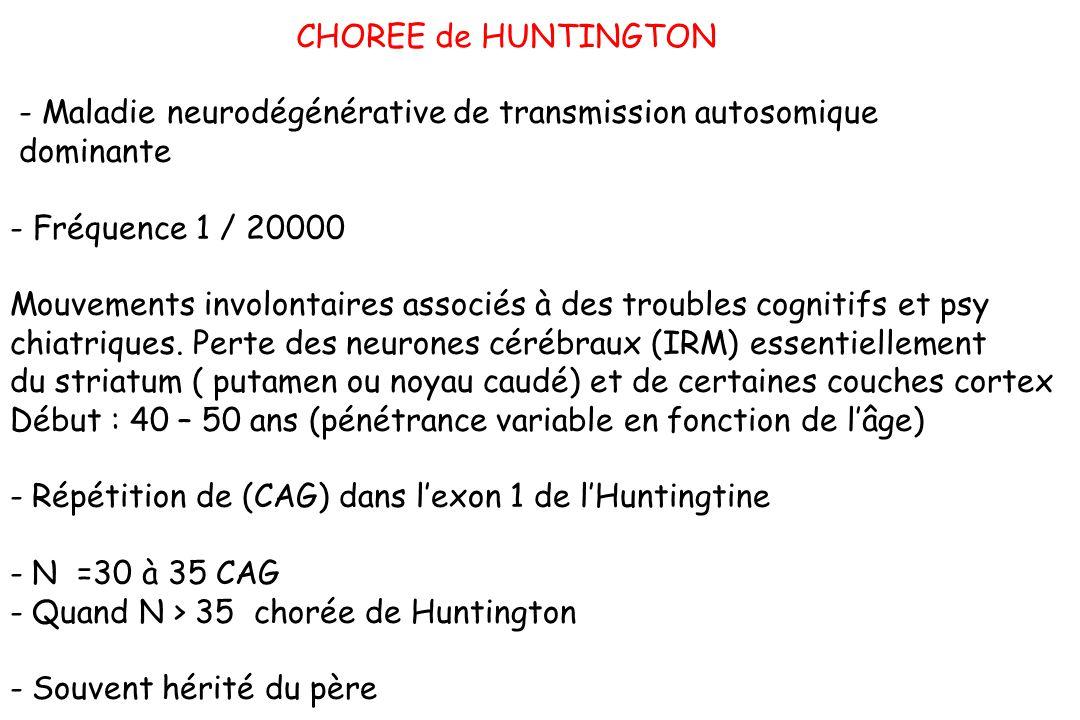 CHOREE de HUNTINGTON - Maladie neurodégénérative de transmission autosomique dominante - Fréquence 1 / 20000 Mouvements involontaires associés à des t