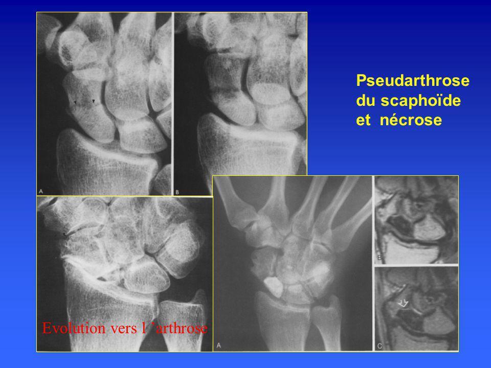Pseudarthrose du scaphoïde et nécrose Evolution vers l arthrose