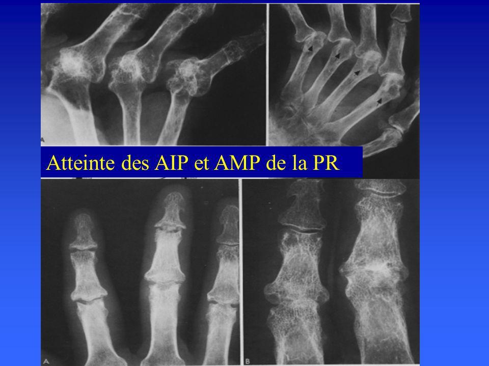 Atteinte des AIP et AMP de la PR