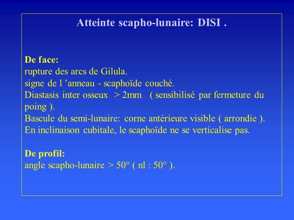 Atteinte scapho-lunaire: DISI.De face: rupture des arcs de Gilula.