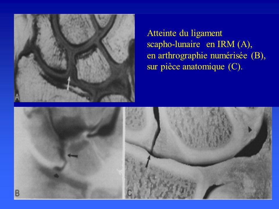 Atteinte du ligament scapho-lunaire en IRM (A), en arthrographie numérisée (B), sur pièce anatomique (C).