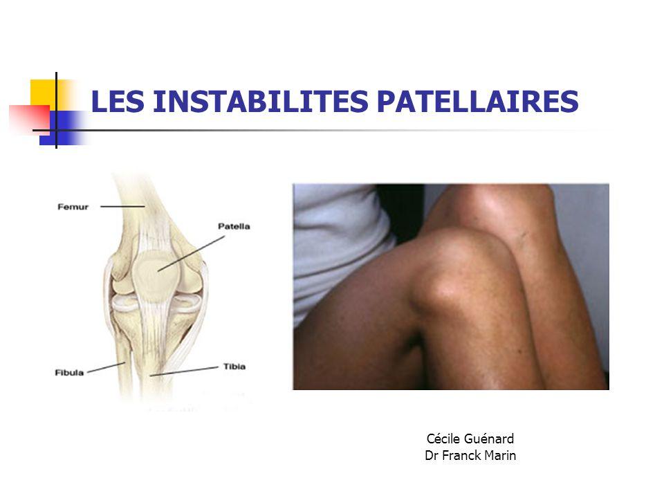 LES INSTABILITES PATELLAIRES Cécile Guénard Dr Franck Marin