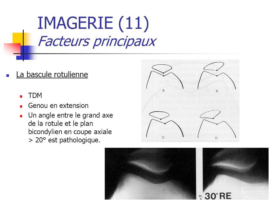 IMAGERIE (11) Facteurs principaux La bascule rotulienne TDM Genou en extension Un angle entre le grand axe de la rotule et le plan bicondylien en coupe axiale > 20° est pathologique.
