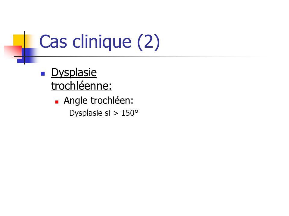 Cas clinique (2) Dysplasie trochléenne: Angle trochléen: Dysplasie si > 150°