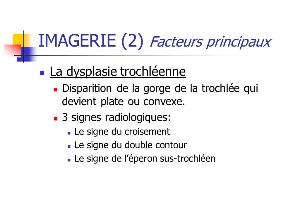 IMAGERIE (2) Facteurs principaux La dysplasie trochléenne Disparition de la gorge de la trochlée qui devient plate ou convexe. 3 signes radiologiques: