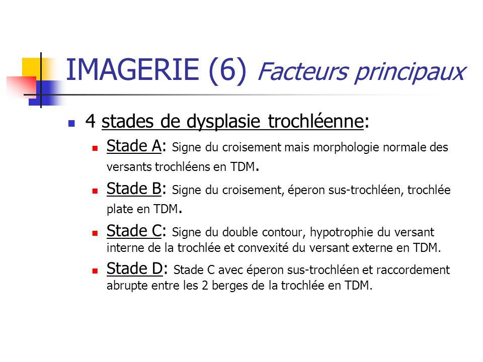 IMAGERIE (6) Facteurs principaux 4 stades de dysplasie trochléenne: Stade A: Signe du croisement mais morphologie normale des versants trochléens en TDM.