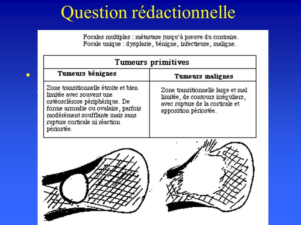 Question rédactionnelle Donnez les signes distinctifs de tumeur osseuse maligne et bénigne sur les clichés standard...