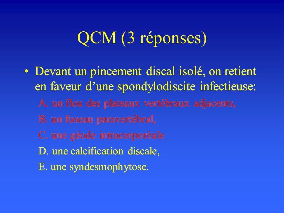 QCM (3 réponses) Devant un pincement discal isolé, on retient en faveur dune spondylodiscite infectieuse: A. un flou des plateaux vertébraux adjacents