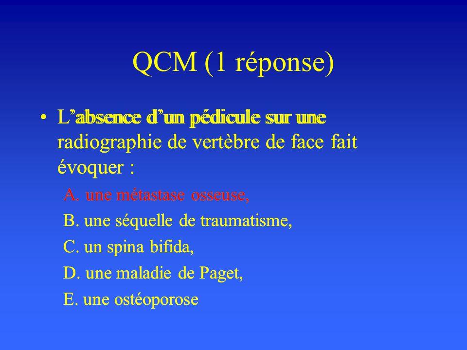 QCM (1 réponse) Labsence dun pédicule sur une radiographie de vertèbre de face fait évoquer : A. une métastase osseuse, B. une séquelle de traumatisme