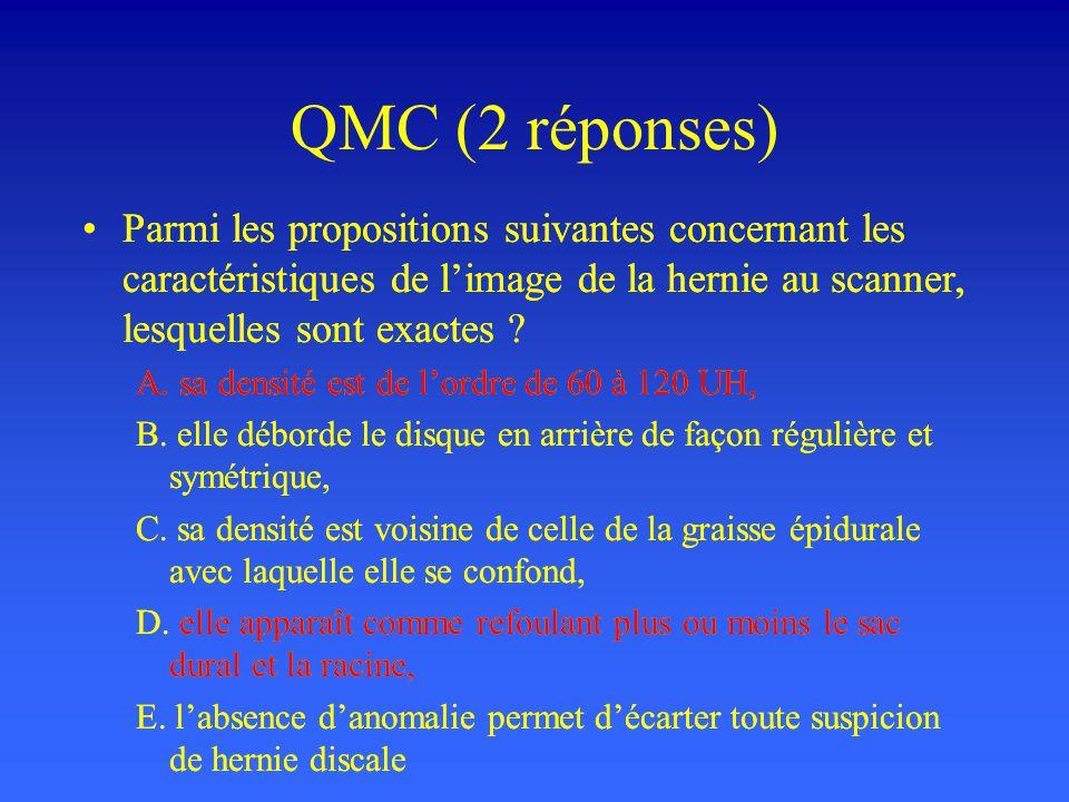 QMC (2 réponses) Parmi les propositions suivantes concernant les caractéristiques de limage de la hernie au scanner, lesquelles sont exactes ? A. sa d