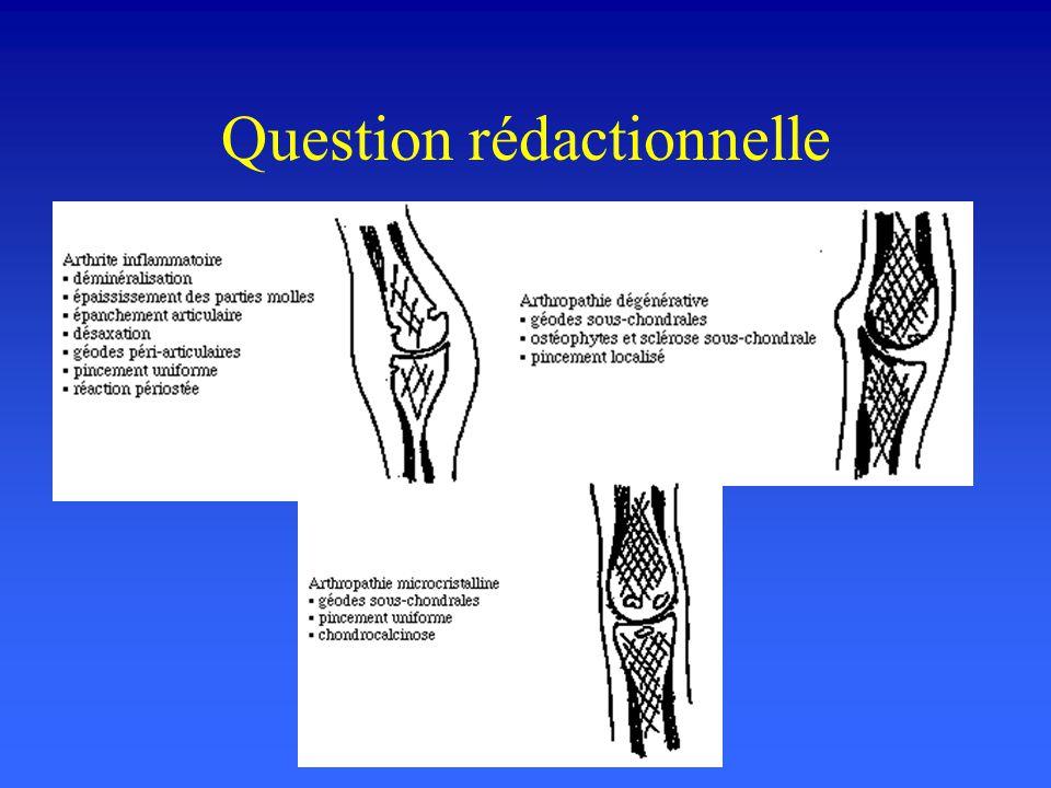 Question rédactionnelle Décrivez les signes de radiologie standard des trois types darthropathie périphérique...