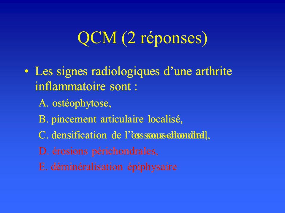 QCM (2 réponses) Les signes radiologiques dune arthrite inflammatoire sont : A. ostéophytose, B. pincement articulaire localisé, C. densification de l