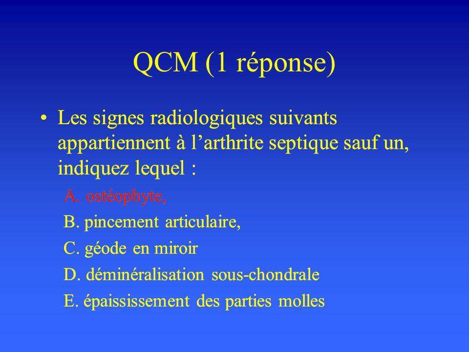 QCM (1 réponse) Les signes radiologiques suivants appartiennent à larthrite septique sauf un, indiquez lequel : A. ostéophyte, B. pincement articulair