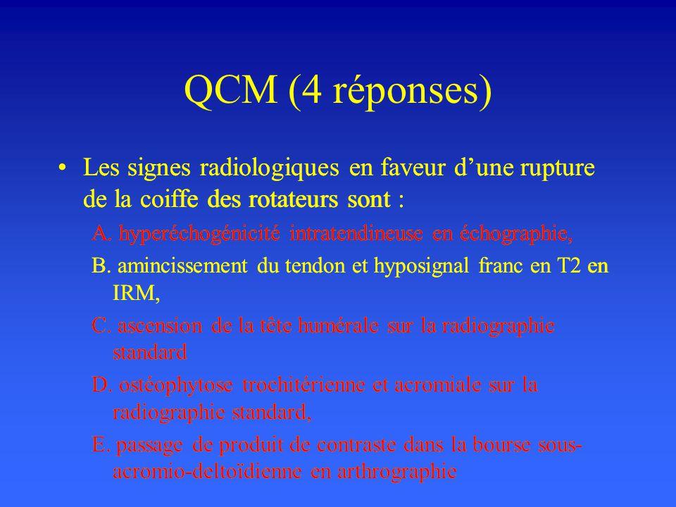 QCM (4 réponses) Les signes radiologiques en faveur dune rupture de la coiffe des rotateurs sont : A. hyperéchogénicité intratendineuse en échographie