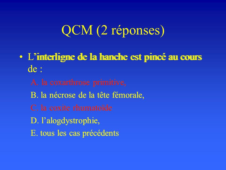 QCM (2 réponses) Linterligne de la hanche est pincé au cours de : A. la coxarthrose primitive, B. la nécrose de la tête fémorale, C. la coxite rhumato