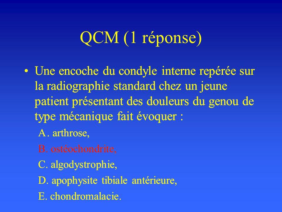 QCM (1 réponse) Une encoche du condyle interne repérée sur la radiographie standard chez un jeune patient présentant des douleurs du genou de type méc