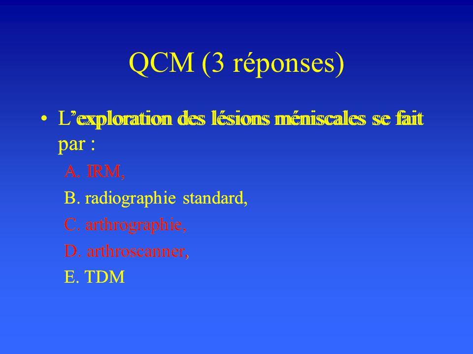 QCM (3 réponses) Lexploration des lésions méniscales se fait par : A. IRM, B. radiographie standard, C. arthrographie, D. arthroscanner, E. TDM Lexplo