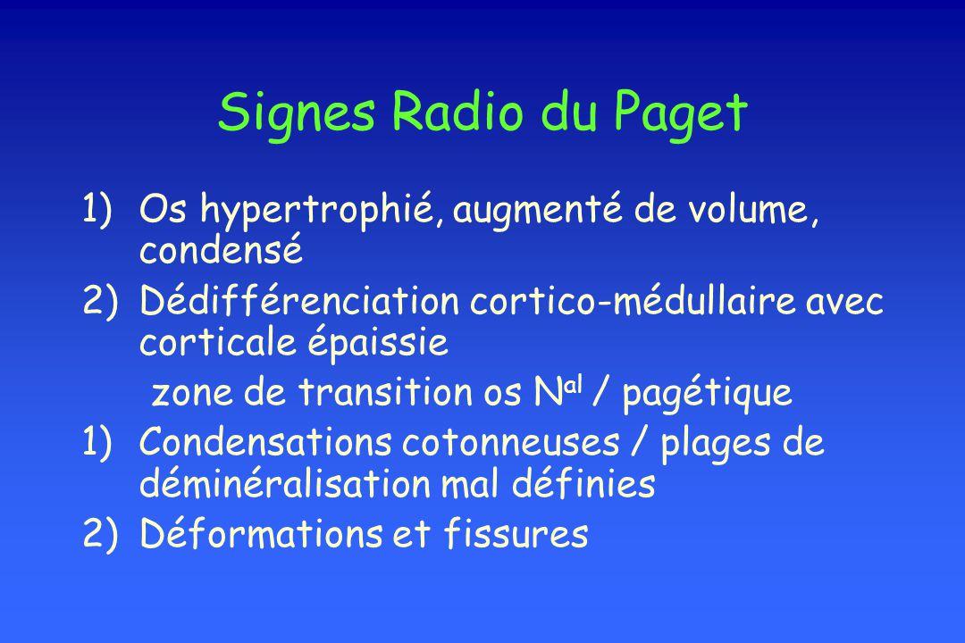 Signes Radio du Paget 1)Os hypertrophié, augmenté de volume, condensé 2)Dédifférenciation cortico-médullaire avec corticale épaissie zone de transitio