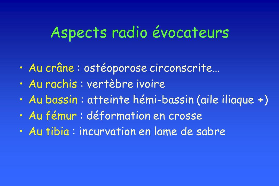 Aspects radio évocateurs Au crâne : ostéoporose circonscrite… Au rachis : vertèbre ivoire Au bassin : atteinte hémi-bassin (aile iliaque +) Au fémur :