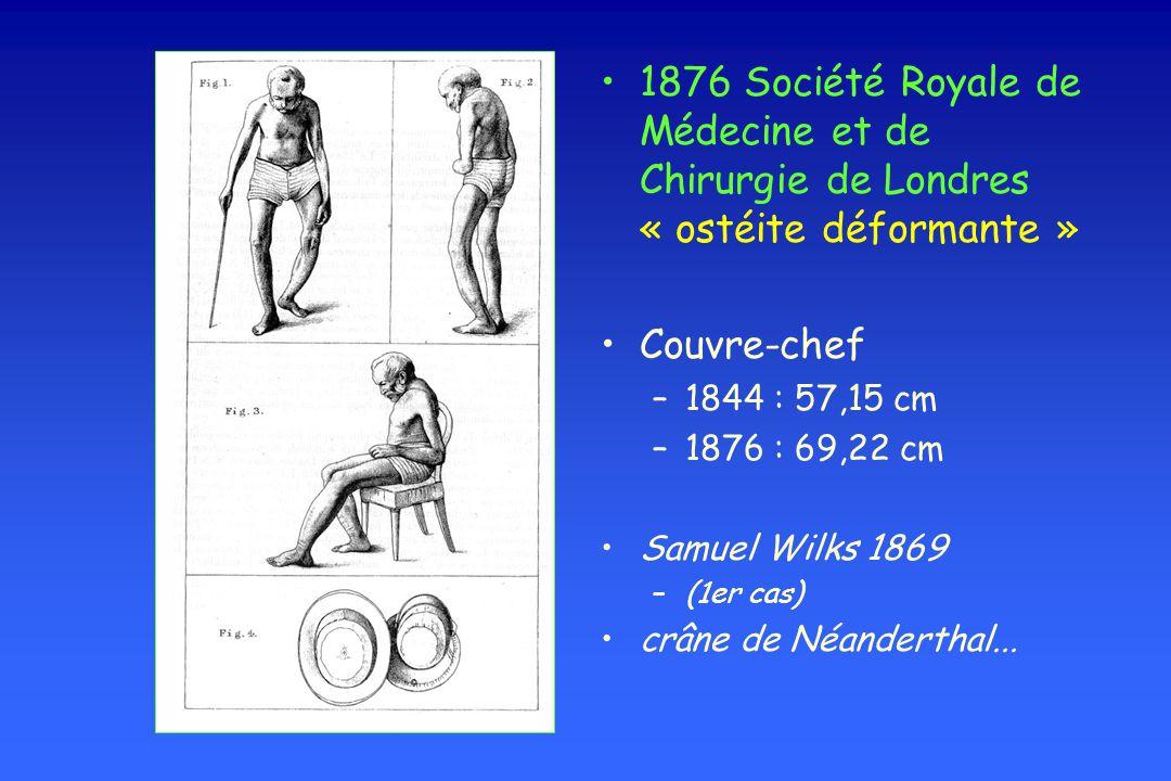 1876 Société Royale de Médecine et de Chirurgie de Londres « ostéite déformante » Couvre-chef –1844 : 57,15 cm –1876 : 69,22 cm Samuel Wilks 1869 –(1e