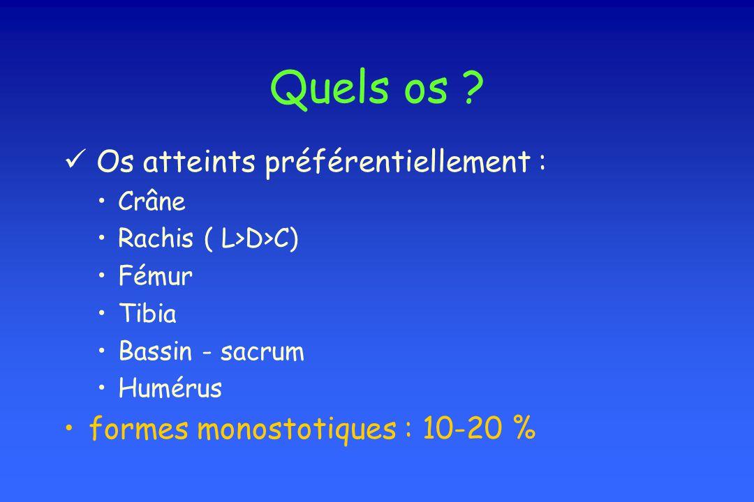 Quels os ? Os atteints préférentiellement : Crâne Rachis ( L>D>C) Fémur Tibia Bassin - sacrum Humérus formes monostotiques : 10-20 %